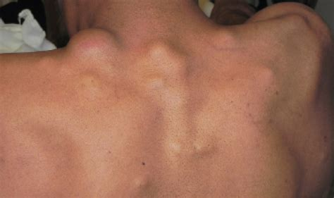 42-Year-Old Male with Painful Masses on Back & Neck - The