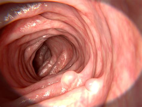 Sessile Polyp: Symptoms, Causes, Diagnosis, and Treatment