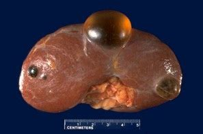 Clinical Cases - Renal Cyst